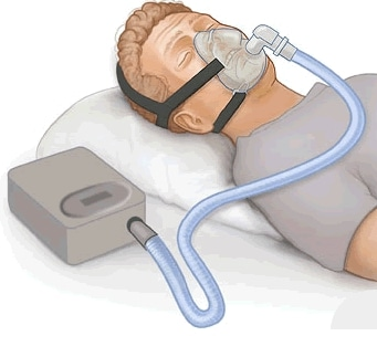 CPAP device on person